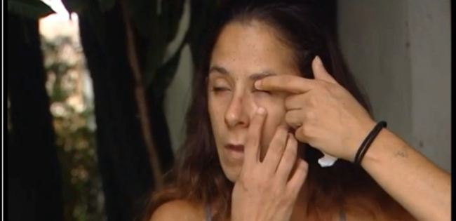 A Florida woman said she mistakenly glued her eye shut with super glue, but her doctor was later able to pry it open. (Source: WPBF)